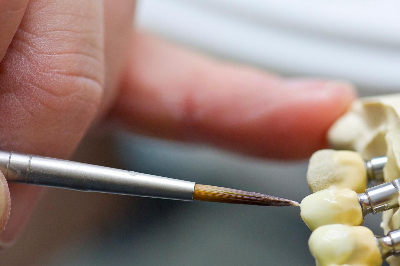Proth Ses Dentaires C Ramiques Et Esth Tique Laboratoire Dentaire Girondin